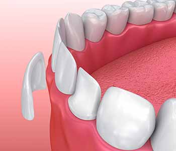 Dr. Suri discusses goals for cosmetic improvement with you and assesses the health of your teeth and gums.