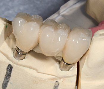 Frisco Elm Dental, Dr. Vidya Suri Little Elm dentist discusses factors influencing cost of your crowns, returns on your investment