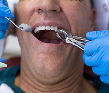 Dental Care & Wellness of Sonoma County Experience just how painless tooth extraction can be with advanced care in Little Elm