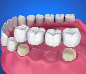 Frisco Elm Dental, Dr. Vidya Suri Quality dental crowns in Little Elm TX rescue badly damaged teeth; repair cosmetic concerns