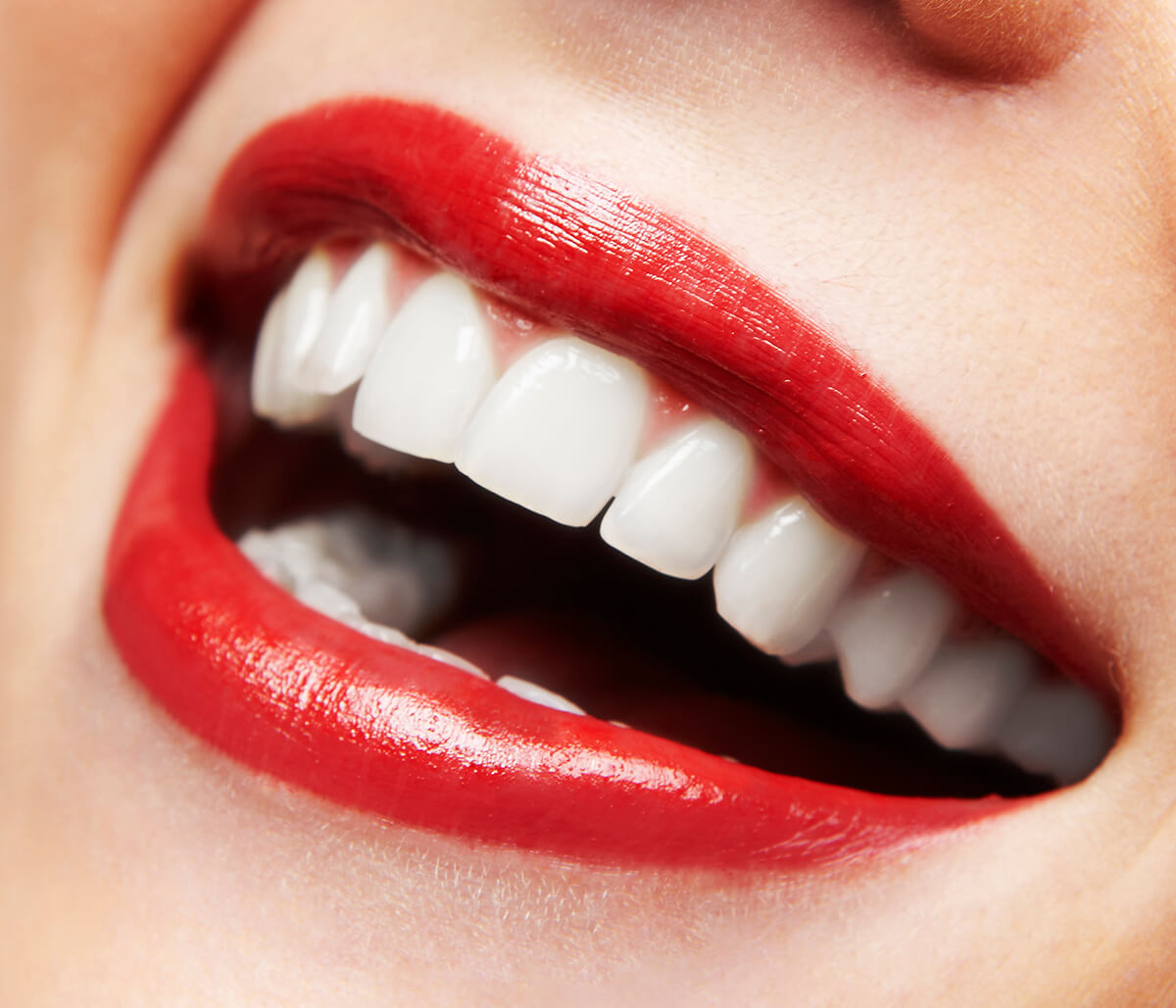 Veneers for Gaps: A Conservative Way to Transform a Gap-toothed Smile in Little Elm, TX Area
