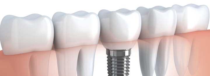Dental Implants Little Elm - Dental Implant