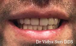 Smile Gallery Little Elm - After Treatment