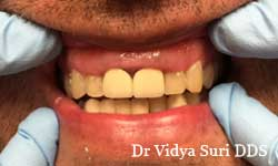 Smile Gallery Little Elm - Before Treatment