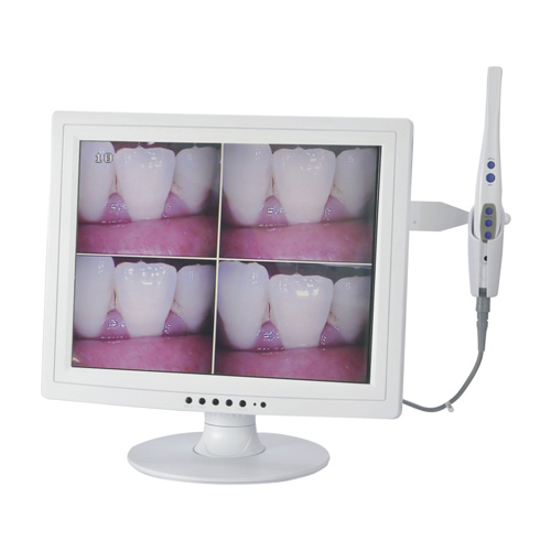 Technology Little Elm - Intra oral camera